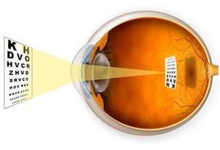 oftamologija
