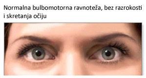 normalno oko